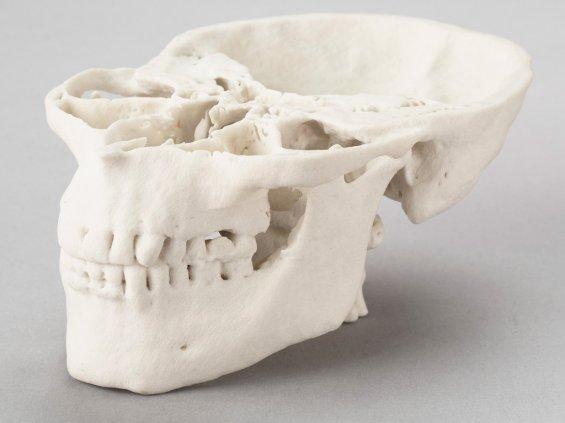 3D печать - череп